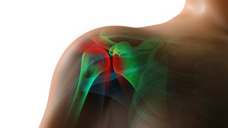 Attorney Settles Rotator Cuff Tear Car Wreck in Gainesville, TX for $127,500