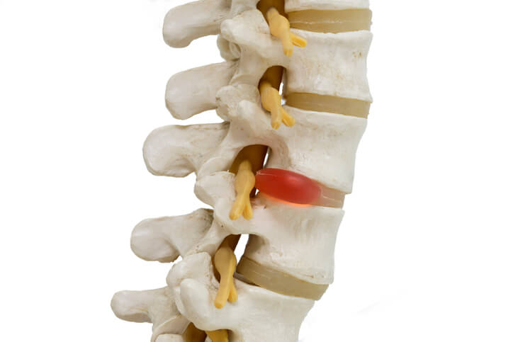 $350,000 Settlement by Attorney for Herniated Disc Injury Car Wreck in Dallas, TX