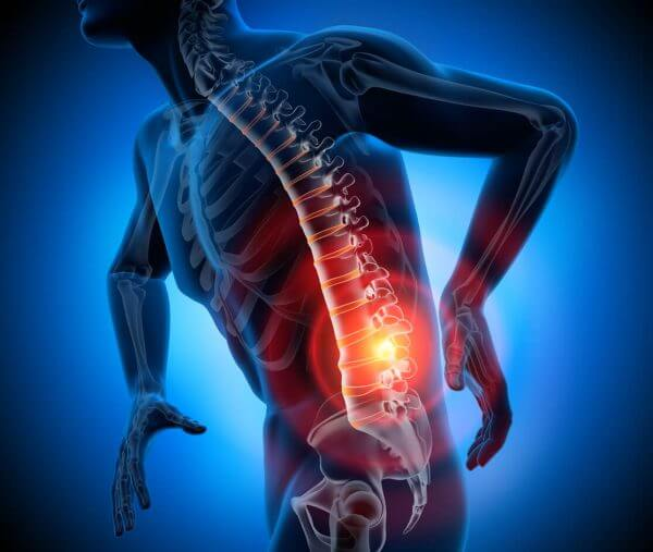 $100,007 Car Accident Settlement by Attorney for Herniated Disc Injury