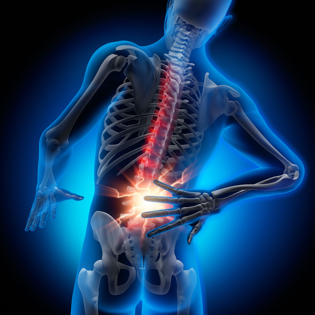 $580,000 for Herniated Disc in Plano, TX (Policy Limits Settlement)