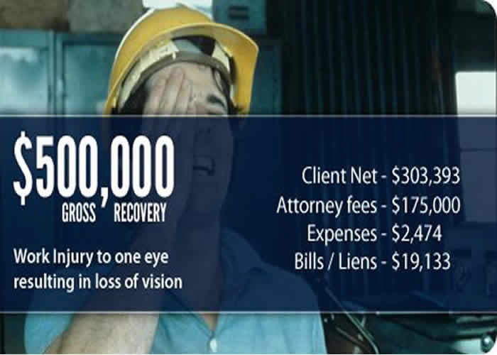 $500,000 Settlement for Work Injury to Eye