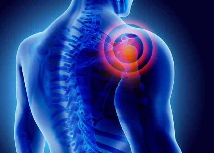 Shoulder Injury Settlements & Verdicts